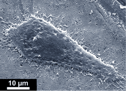 REM micrograph of a fibroblast on fabricated nanorods.