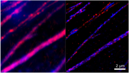 fluorescence image demonstrating super-resolved colocalization of collagen and pericardin fibers.